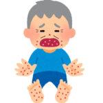 手足口病は高齢者にもうつる?治療薬が無いって本当?